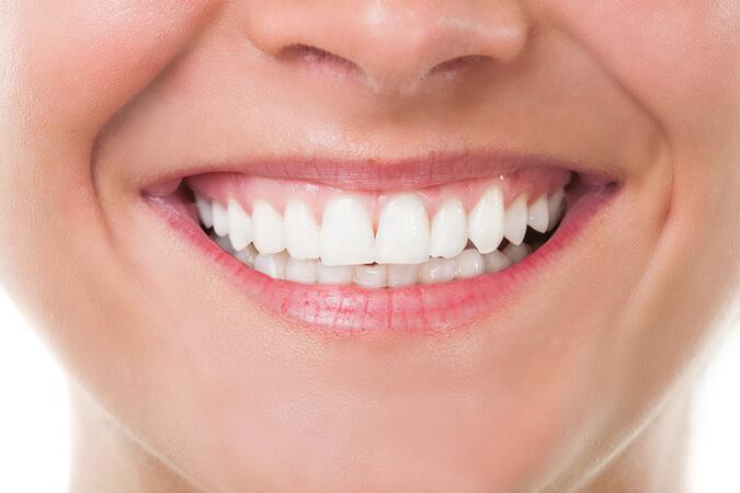 Tandblekning hemma – vita tänder snabbt och billigt